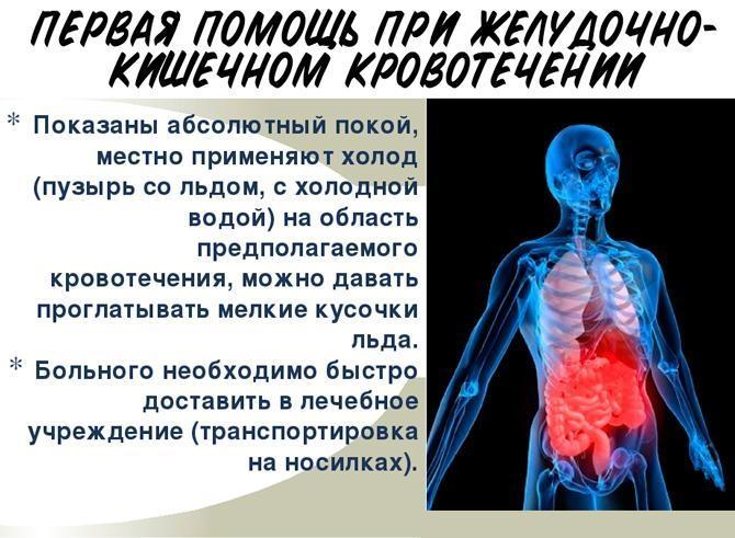pervaya-pomoshch-pri-zheludochnom-krovotechenii.jpg